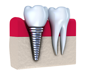 Greensboro, NC Dental Implants